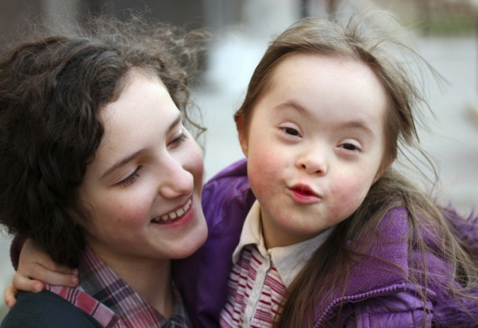 down syndrome14